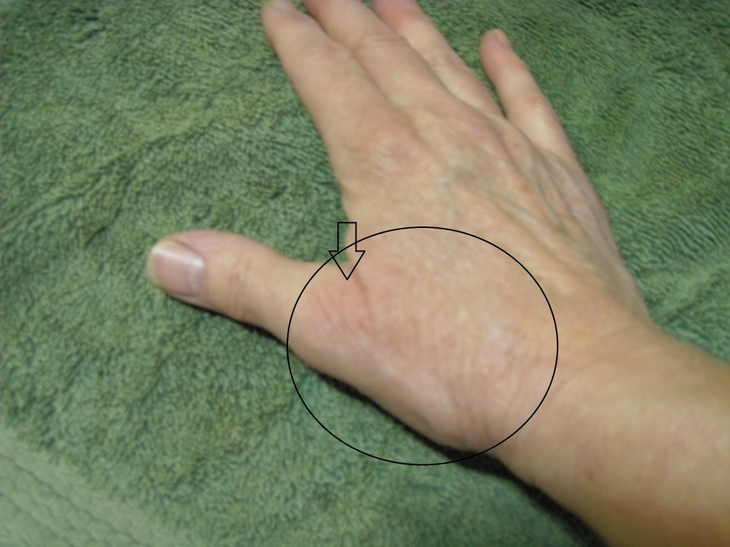 Circle shows the original area of eczema (plus some on the underside of the wrist). If you look closely near the point of the arrow, you can see the little bit that remains.